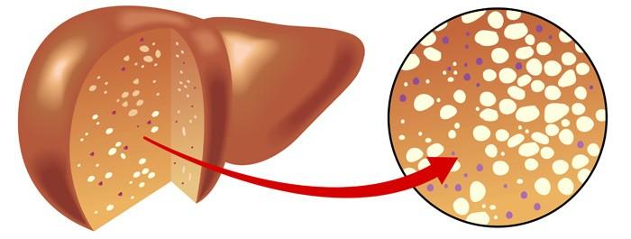 ไวรัสตับอักเสบ บี ซี อาการของโรค สมุนไพรรักษาโรค thai herb