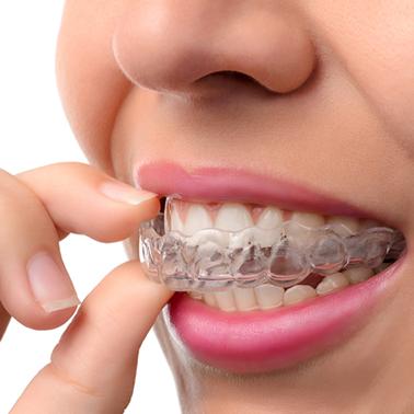 รายละเอียดการจัดฟันแบบใส การจัดฟันแบบ Invisalign