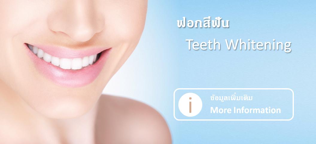 บริการฟอกสีฟันขาว