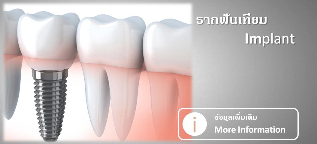 การทำรากฟันเทียม