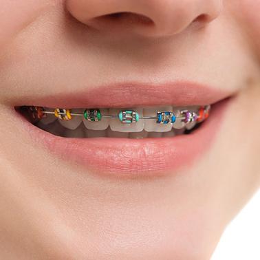 รายละเอียดการจัดฟันแบบโลหะธรรมดา
