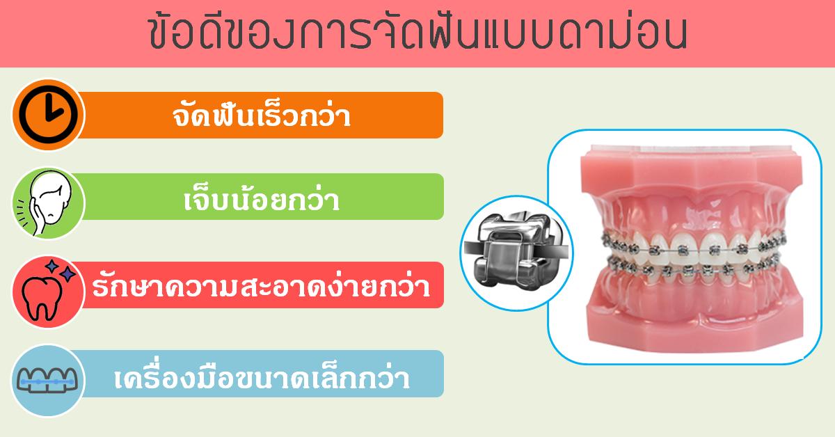 ข้อดีของการจัดฟันแบบดาม่อน คือ ดาม่อนเป็นเครื่องมือจัดฟันที่ไม่ต้องใช้ยางเหมือนการจัดฟันแบบทั่วไป ทำให้ระยะเวลาในการจัดฟันเร็วกว่า การจัดฟันแบบดาม่อนคนไข้จะเจ็บน้อยกว่าการจัดฟันแบบทั่วไป การรักษาความสะอาดช่องปากสำหรับผู้ที่จัดฟันแบบดาม่อนจะง่ายกว่า และเครื่องมือดาม่อนจะมีขนาดเล็กกว่าการจัดฟันแบบธรรมดา