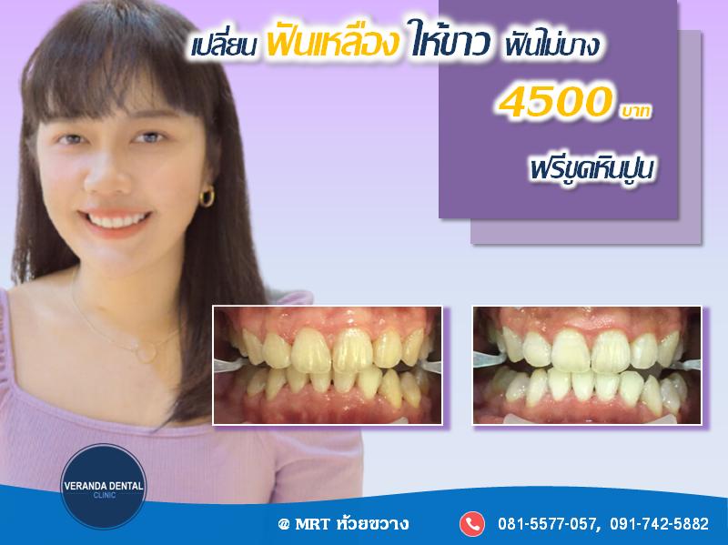 ฟอกสีฟันขาวโดยทันตแพทย์ เป็นวิธีแก้ฟันเหลืองที่นิยมที่สุด และได้ผลเร็วที่สุด