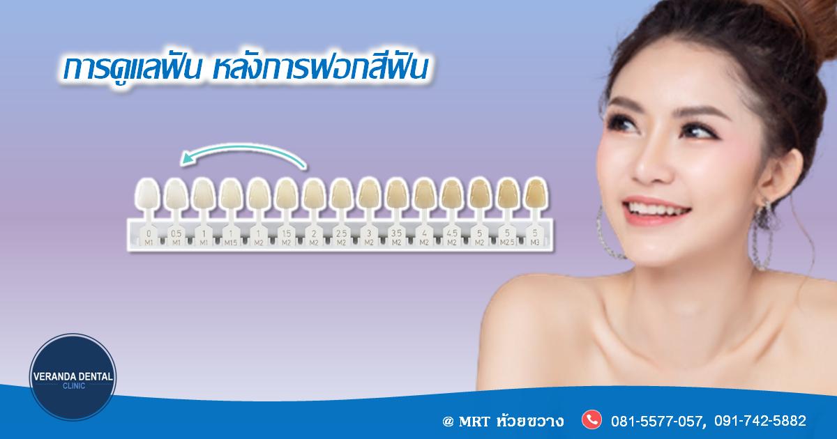 ข้อปฏิบัติหลังฟอกสีฟันขาว