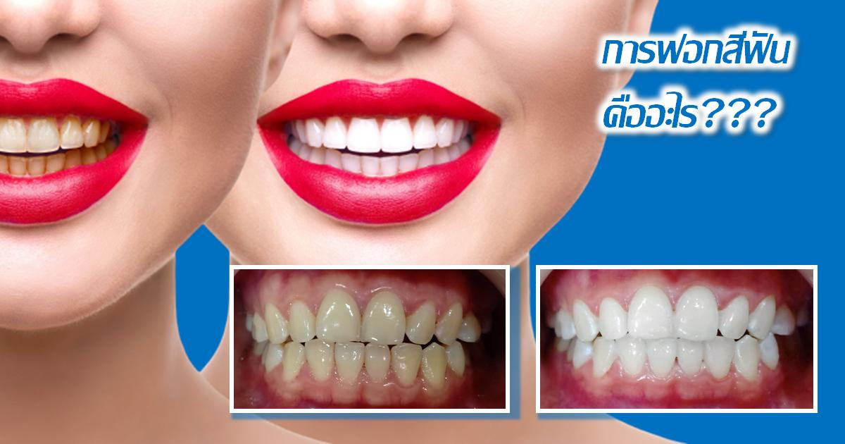 การฟอกสีฟันขาวคืออะไร